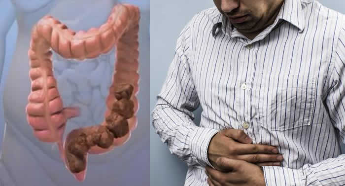 Surprising Reasons You're Constipated